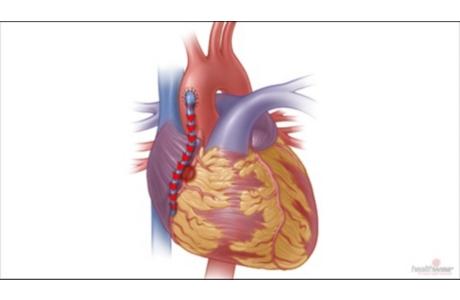 Cirugía de derivación vascular para una enfermedad cardíaca