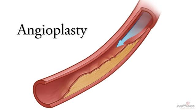 Angioplasty for Coronary Artery Disease