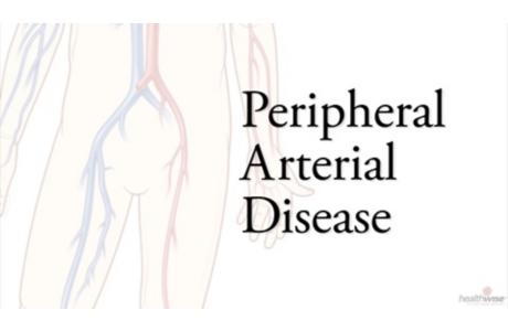 Angioplastia para la arteriopatía periférica (subtitulado)