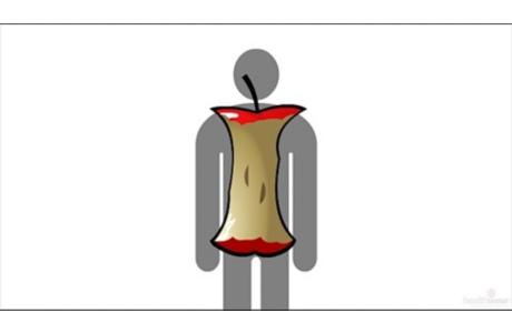 Dolor de espalda: Cómo fortalecer el tronco (subtitulado)