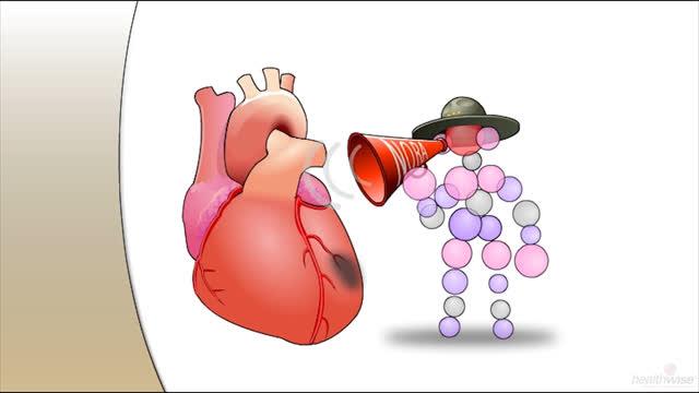 Betabloqueantes después de un ataque al corazón (subtitulado)