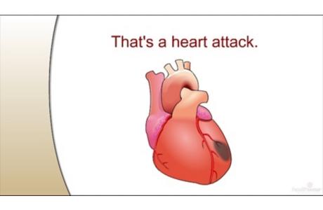 Cómo sucede un ataque al corazón (subtitulado)