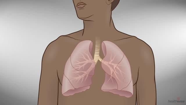 Asma: Qué sucede en los pulmones
