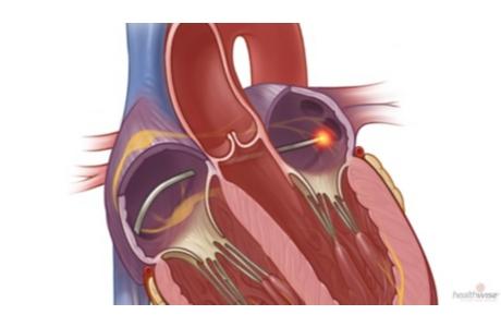 Ablación con catéter para la fibrilación auricular (subtitulado)