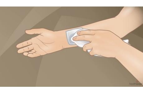 Cómo cuidar una herida en la piel (subtitulado)