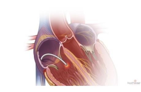 Ablación con catéter para la taquicardia supraventricular (subtitulado)