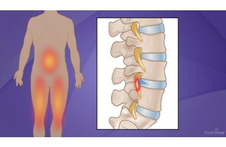 Cirugía lumbar para una hernia discal