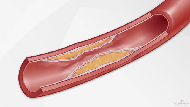 Colesterol: Cómo eleva su riesgo