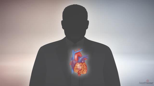 La diabetes y el corazón