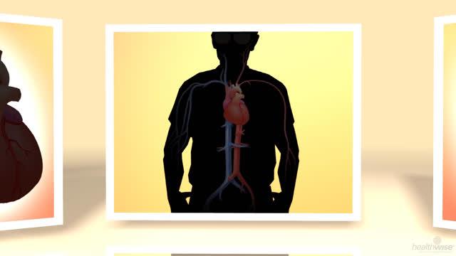 Insuficiencia cardíaca: Tomar un inhibidor de la ECA o ARB