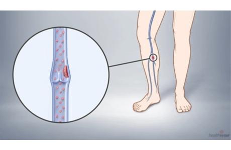 Cómo prevenir coágulos de sangre en las venas de las piernas (subtitulado)