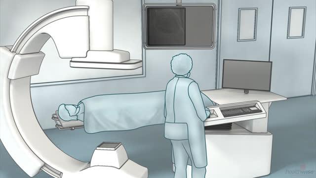 Angiografía coronaria: ¿Qué es?