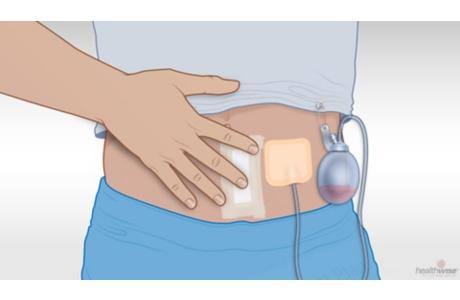 Cómo cuidar un drenaje quirúrgico (subtitulado)