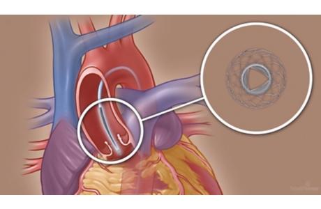 Reemplazo de la válvula aórtica por catéter (subtitulado)