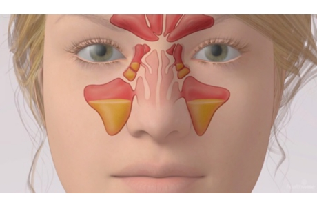 Sinusitis (subtitulado)
