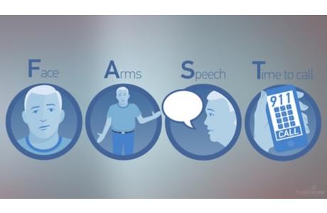 Ataque cerebral: Sepa cuáles son las señales y actúe con rapidez