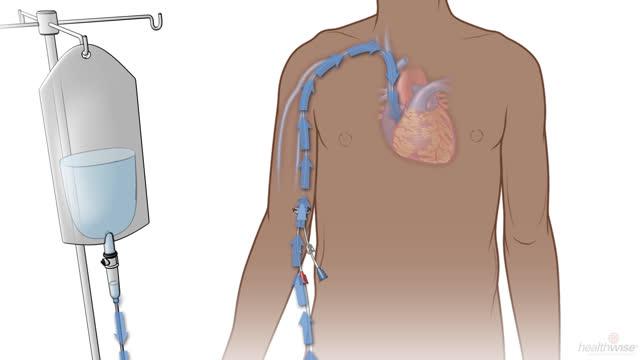 Tratamiento por medio de un catéter PICC o una vía central