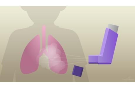 Su inhalador de corticosteroides: Cómo facilitar la respiración
