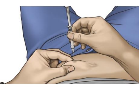 Cómo darse una inyección subcutánea