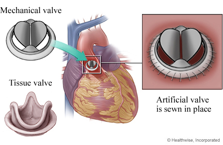 Mechanical valve and tissue valve, showing mechanical valve in heart, with detail of valve sewn in place