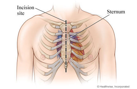 Chest incision site down the middle of the sternum from top to bottom of sternum