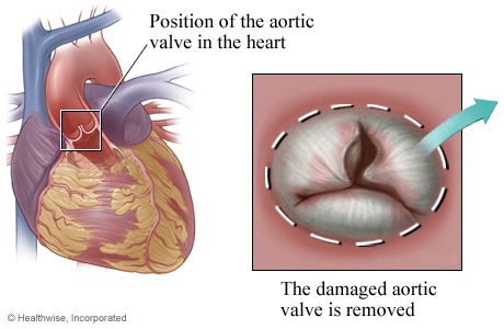 Location of aortic valve in the heart with detail of damaged valve