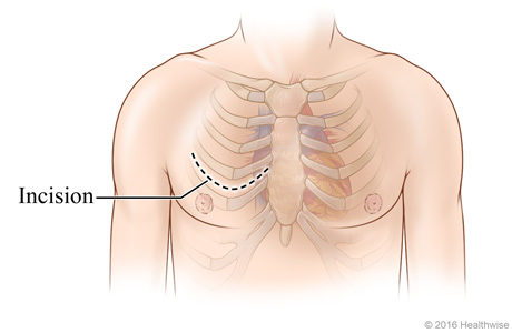 Chest incision site across chest between two ribs