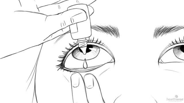 Aquí tiene ayuda: Cómo aplicarse gotas o pomada para los ojos