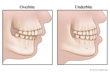 Skeletal views of overbite and underbite