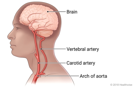 Inside view of head and neck, showing brain, cerebral artery, carotid artery, vertebral artery, and arch of the aorta