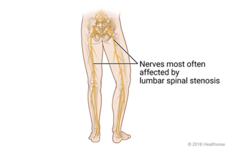Location of nerves down legs that are most often affected by lumbar spinal stenosis