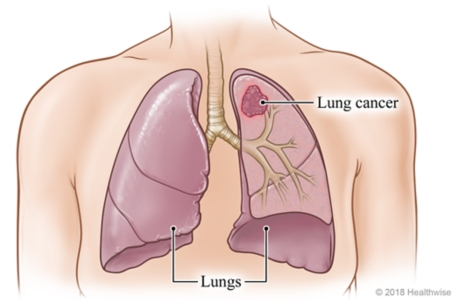 Location of lungs in chest, showing lung cancer in upper lobe of a lung
