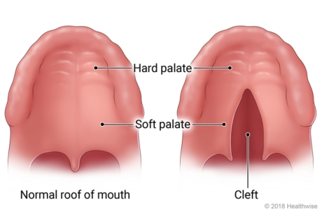 Location of hard palate and soft palate on roof of mouth, showing normal roof of mouth and one with cleft in soft palate