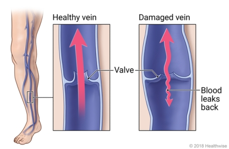 Veins in leg, with detail of healthy vein and valve and of damaged vein that allows blood to leak backward