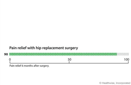 Six months after hip replacement, about 90 out of 100 people have less pain than before the surgery