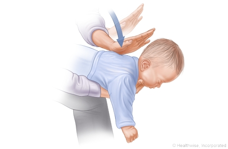 Choking rescue procedure (Heimlich maneuver) with baby facedown