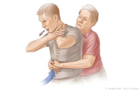 Choking rescue procedure (Heimlich maneuver)