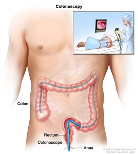 Colonoscopy; shows colonoscope inserted through the anus and rectum and into the colon. Inset shows patient on table having a colonoscopy.