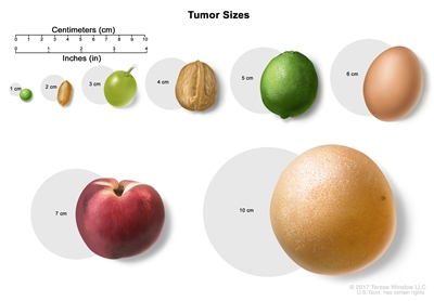 Tumor sizes; drawing shows different sizes of a tumor compared to the size of a pea (1 cm), peanut (2 cm), grape (3 cm), walnut (4 cm), lime (5 cm), egg (6 cm), peach (7 cm), and grapefruit (10 cm).