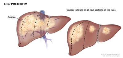 Liver PRETEXT IV; drawing shows two livers. Dotted lines divide each liver into four vertical sections that are about the same size. In the first liver, cancer is shown across all four sections. In the second liver, cancer is shown in the two sections on the left and spots of cancer are shown in the two sections on the right.