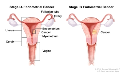 Stage IA and stage IB endometrial cancer shown in two cross-section drawings of the uterus and cervix. Drawing on the left shows stage IA, with cancer in the endometrium and myometrium of the uterus. Drawing on the right shows stage IB, with cancer more than halfway through the myometrium. Also shown are the fallopian tubes, ovaries, and vagina