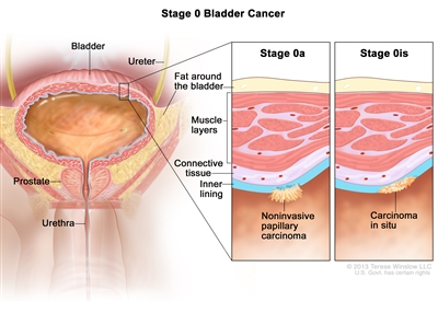 Stage 0 bladder cancer; drawing shows the bladder, ureter, prostate, and urethra. First inset shows stage 0a (also called noninvasive papillary carcinoma) on the inner lining of the bladder. Second inset shows stage 0is (also called carcinoma in situ) on the inner lining of the bladder. Also shown are the layers of connective tissue and muscle tissue of the bladder and the layer of fat around the bladder.