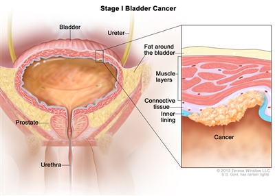 Stage I bladder cancer; drawing shows the bladder, ureter, prostate, and urethra. Inset shows cancer in the inner lining of the bladder and in the layer of connective tissue next to it. Also shown are the muscle layers of the bladder and the layer of fat around the bladder.