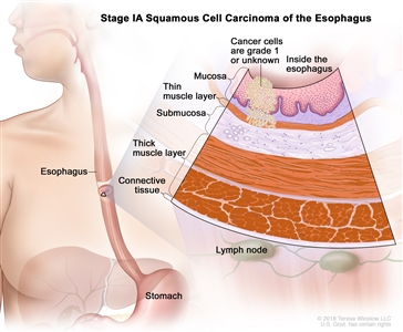 Stage IA squamous cell cancer of the esophagus; drawing shows the esophagus and stomach. An inset shows grade 1 cancer cells or cancer cells of an unknown grade in the mucosa layer and thin muscle layer of the esophagus wall. Also shown are the submucosa layer, thick muscle layer, and connective tissue layer of the esophagus wall. The lymph nodes are also shown.