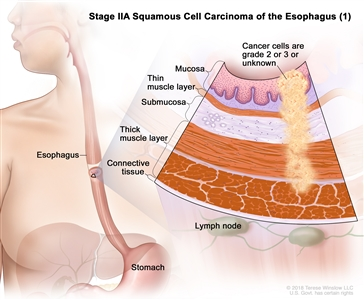 Stage IIA squamous cell cancer of the esophagus (1); drawing shows the esophagus and stomach. An inset shows grade 2 or 3 cancer cells or cancer cells of an unknown grade in the mucosa layer, thin muscle layer, submucosa layer, and thick muscle layer of the esophagus wall. Also shown are the connective tissue layer of the esophagus wall and the lymph nodes.