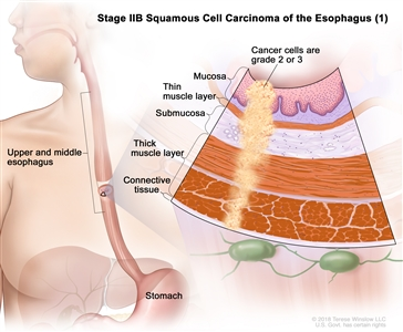 Stage IIB squamous cell cancer of the esophagus (1); drawing shows the upper and middle parts of the esophagus and the stomach. An inset shows grade 2 or 3 cancer cells in the mucosa layer, thin muscle layer, submucosa layer, thick muscle layer, and connective tissue layer of the upper and middle esophagus wall.