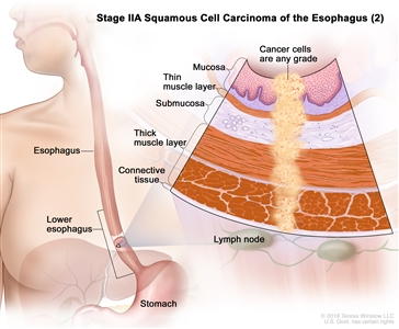 Stage IIA squamous cell cancer of the esophagus (2); drawing shows the esophagus, including the lower part of the esophagus, and the stomach. An inset shows cancer cells of any grade in the mucosa layer, thin muscle layer, submucosa layer, thick muscle layer, and connective tissue layer of the lower esophagus wall. The lymph nodes are also shown.