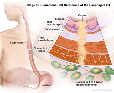 Stage IIIB squamous cell cancer of the esophagus (1); drawing shows the esophagus and stomach. An inset shows cancer cells in the mucosa layer, thin muscle layer, submucosa layer, thick muscle layer, and connective tissue layer of the esophagus wall and in 4 lymph nodes near the tumor.