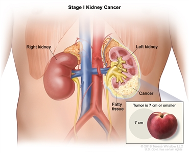 Stage I kidney cancer; drawing shows cancer in the left kidney and the tumor is 7 centimeters or smaller. An inset shows 7 centimeters is about the size of a peach. Also shown are fatty tissue and the right kidney.