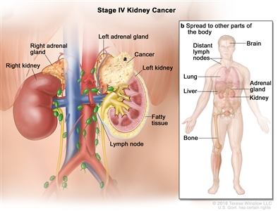 Stage IV kidney cancer; drawing shows cancer that has spread beyond the layer of fatty tissue around the left kidney to a) the adrenal gland above the left kidney. Also shown are the lymph nodes, right adrenal gland, and right kidney. An inset shows b) other parts of the body where kidney cancer may spread, including the brain, lung, liver, adrenal gland, bone, and distant lymph nodes.